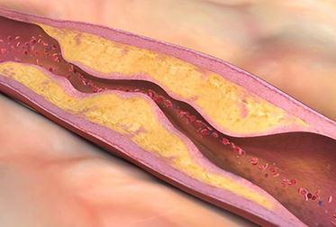 Kan'daki Trigliserid Seviyesi Nasıl Düzenlenebilir