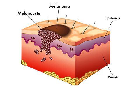 Melanoma Kanseri